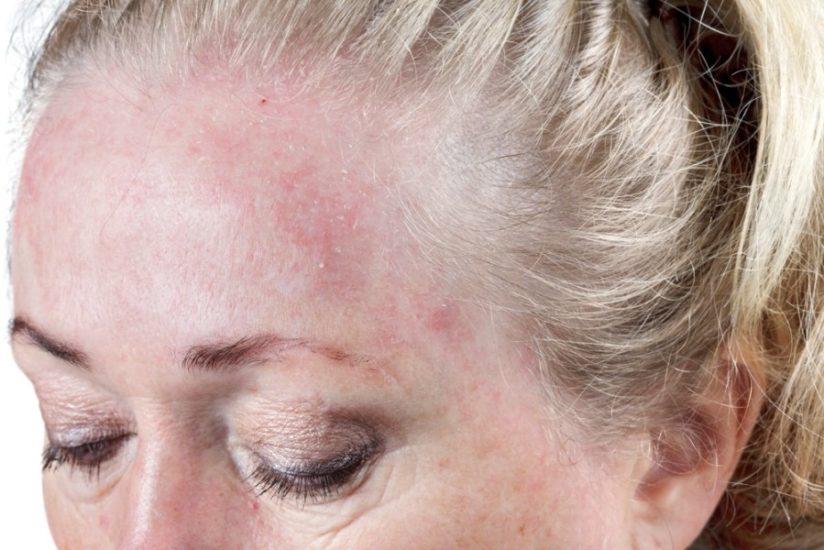 аллергия на лак для волос