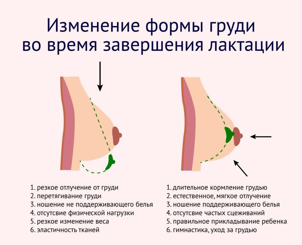 изменение формы груди после завершения лактации