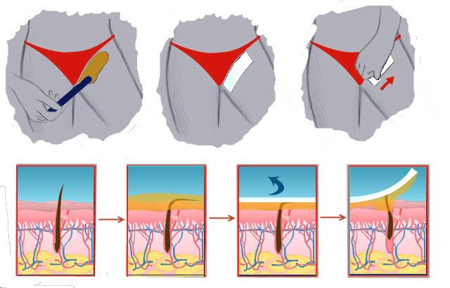 Виды интимных стрижек