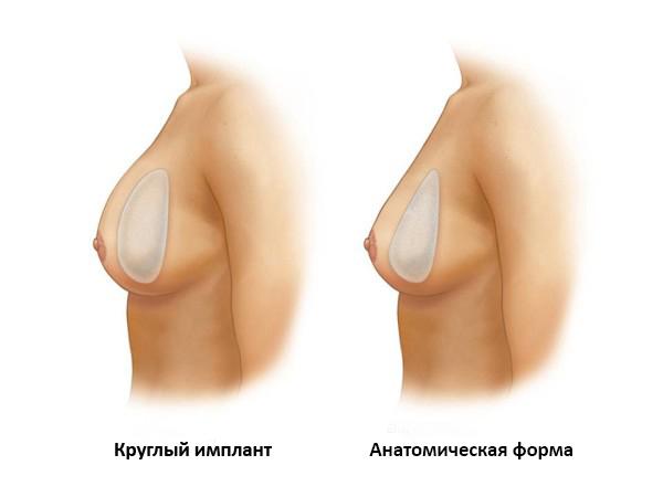 круглый и анатомический имплант в груди