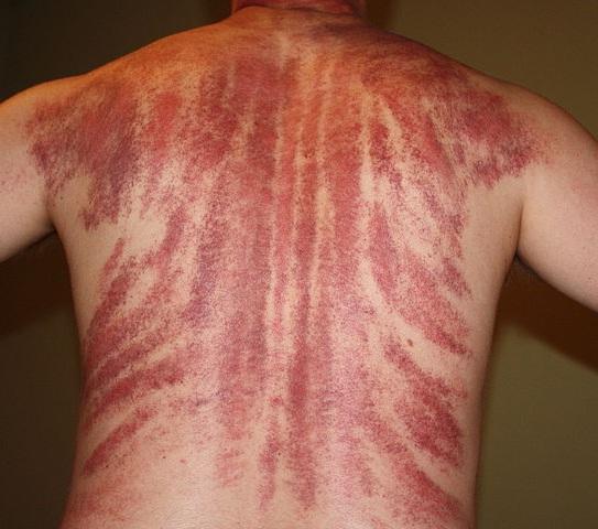 массаж гуаша фото после