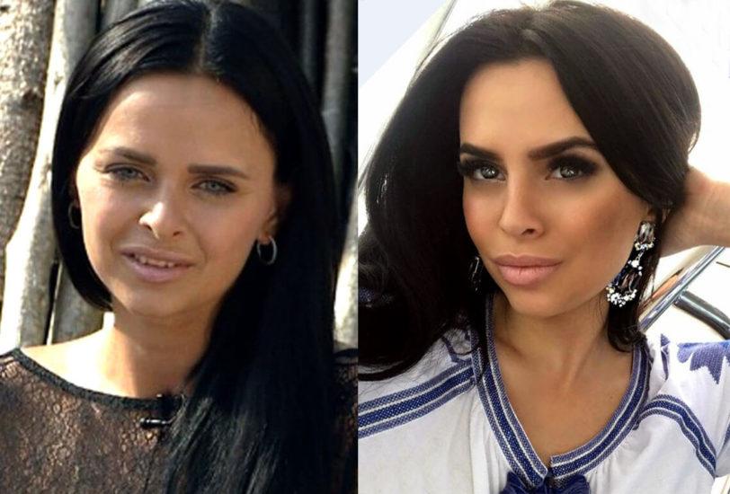 романец до и после пластики носа