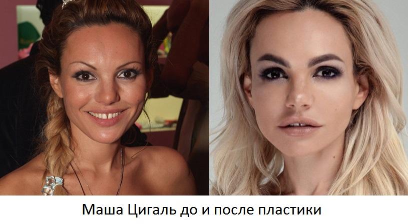цигаль до и после пластики