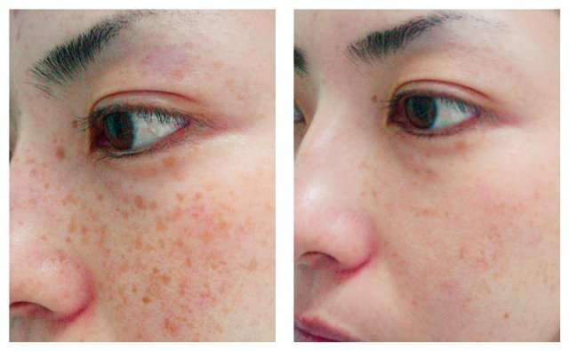 фото до и после лазерного удаления веснушек