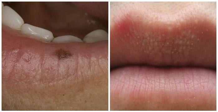 сыпь и родинка на губе