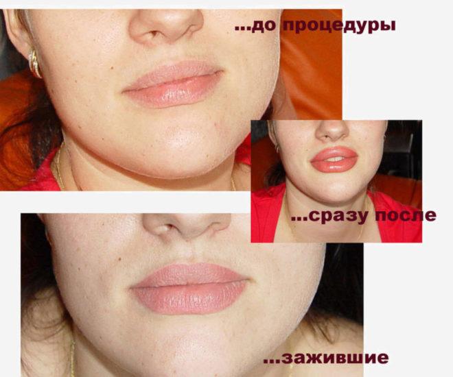 заживление губ