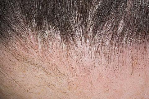дерматит кожи головы