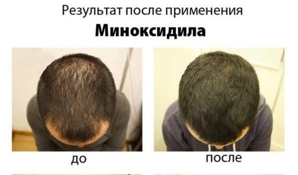 генерулон до и после