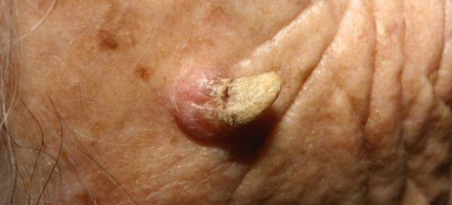 Кожный рог: лечение
