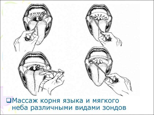 массаж корня языка