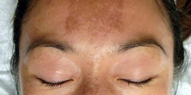 коричневые пятна или мелазма