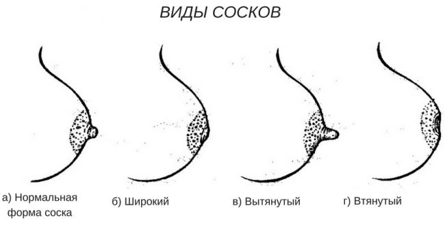 втянутые соски