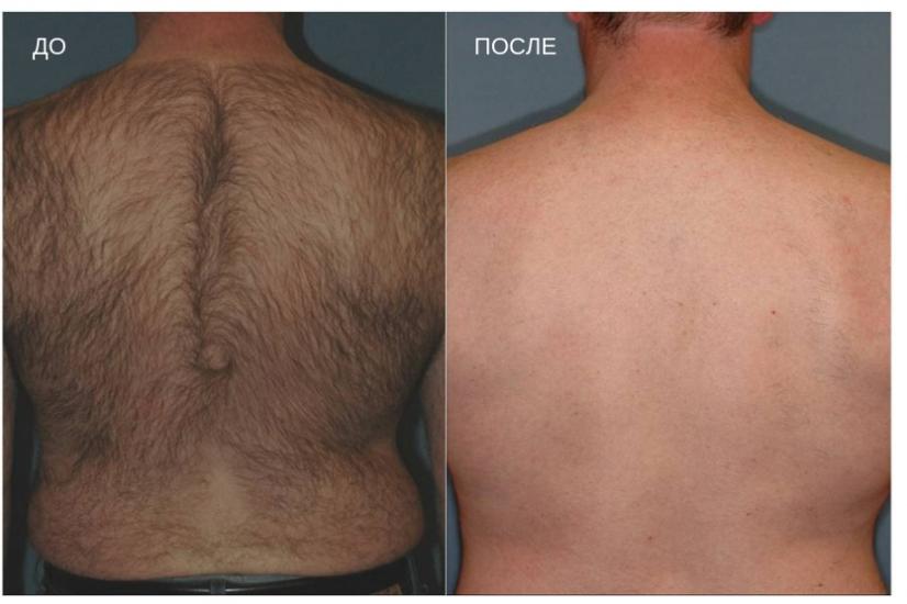 до и после эпиляции спины
