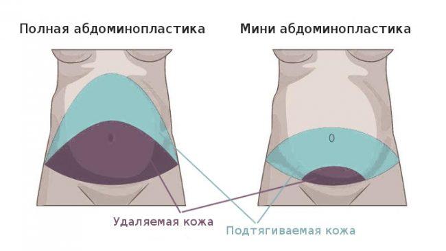 отек после абдоминопластики