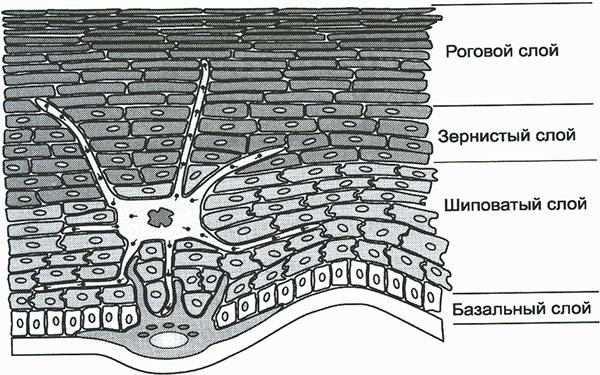 гиперкератоз