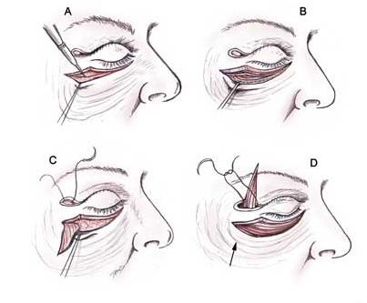 Пластическая хирургия лица