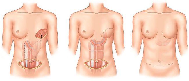Реконструктивная пластическая хирургия