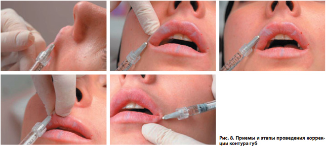 Увеличение губ гиалуроновой кислотой