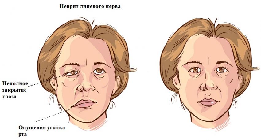 Асимметрия лица