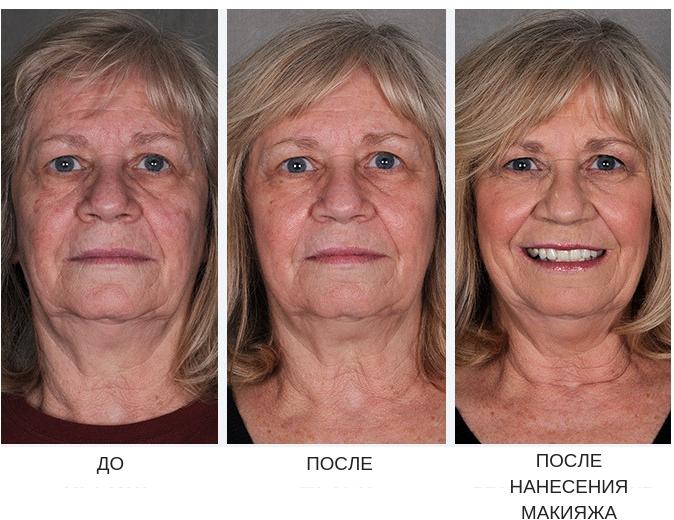 Фраксель - лазерная терапия кожи лица
