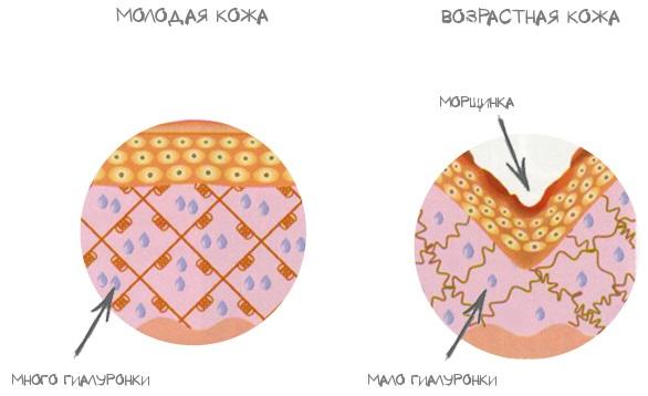 Крем с гиалуроновой кислотой