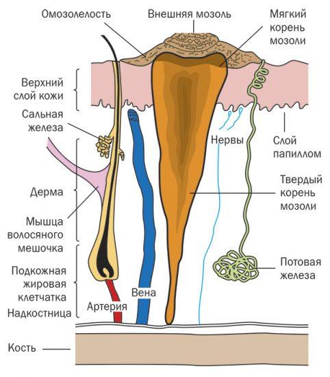 сухая мозоль