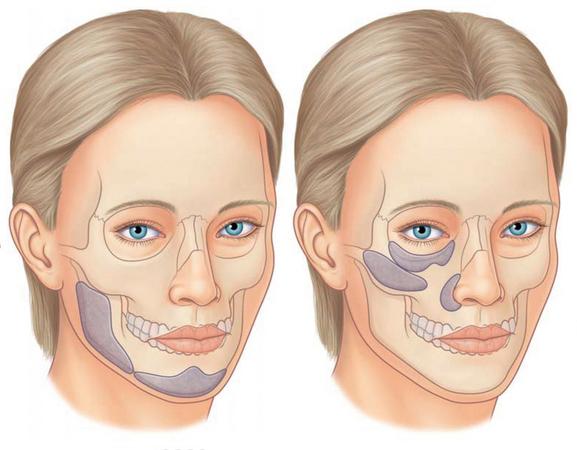 Лицевые импланты