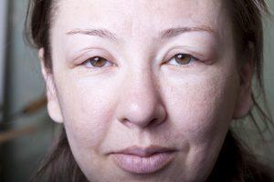 Отечность лица у женщин