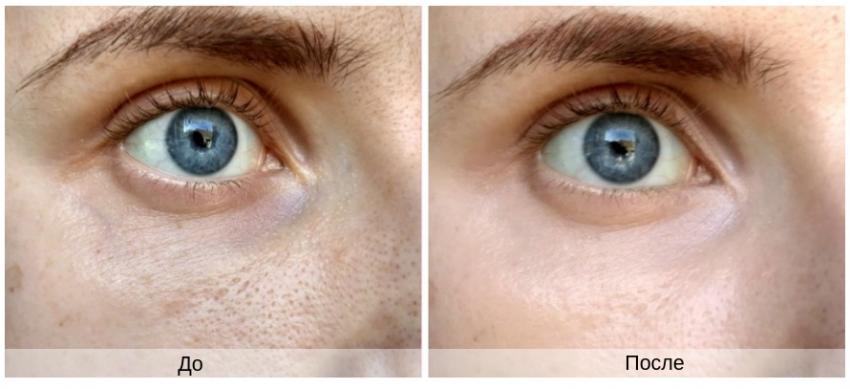 результат применения гепариновой мази под глаза