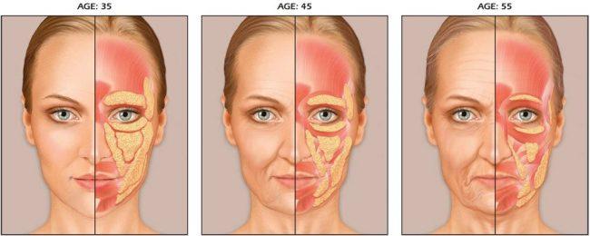 опущение лица с возрастом