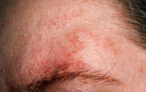 Себорейный дерматит признаки