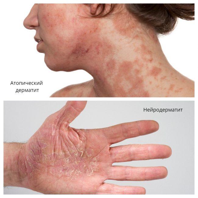 дерматит симптомы