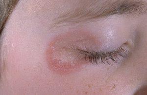 микроспория симптомы
