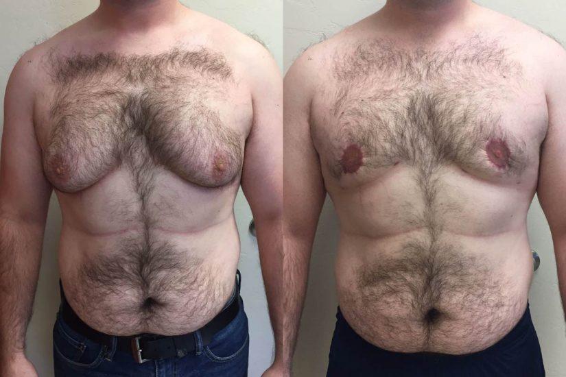 результат мастопексии при гинекомастии