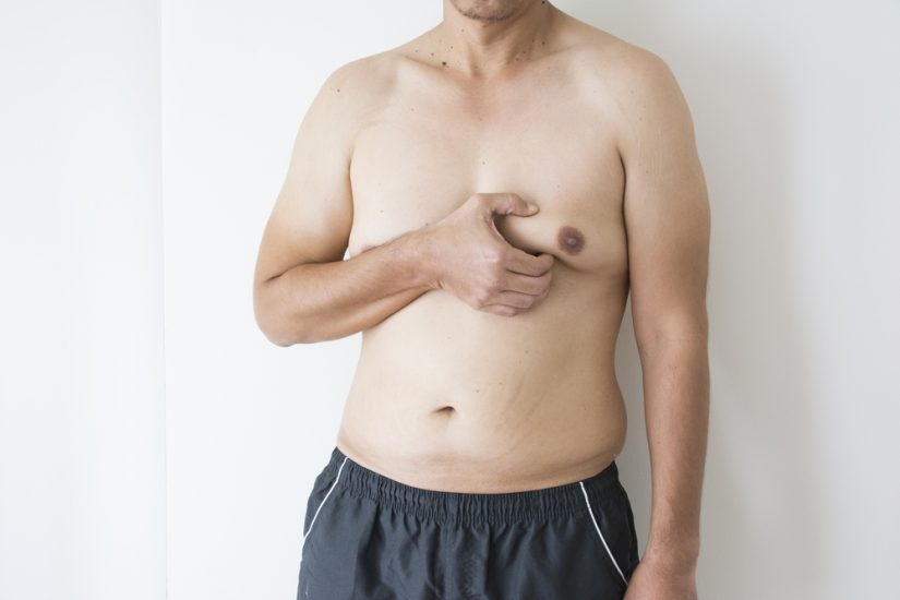 диагностика липомастии