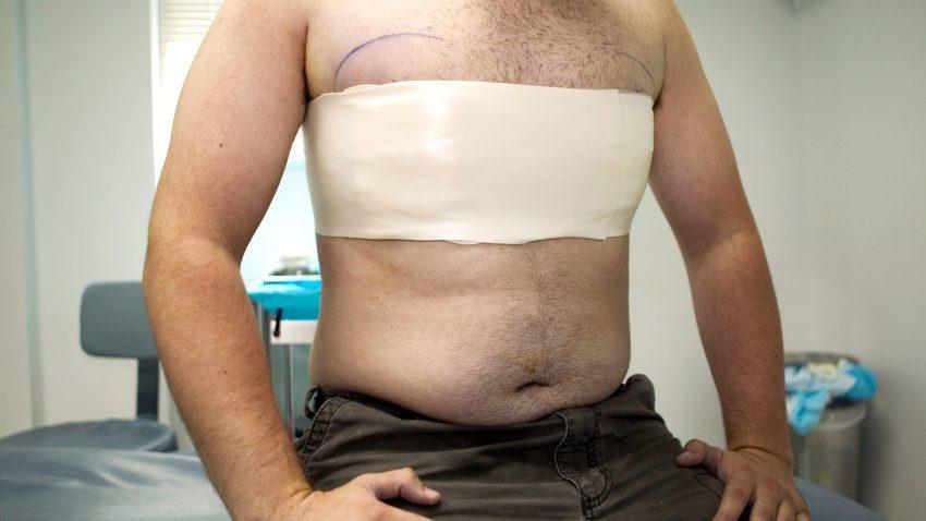 липомастия удаление жира из груди у мужчины