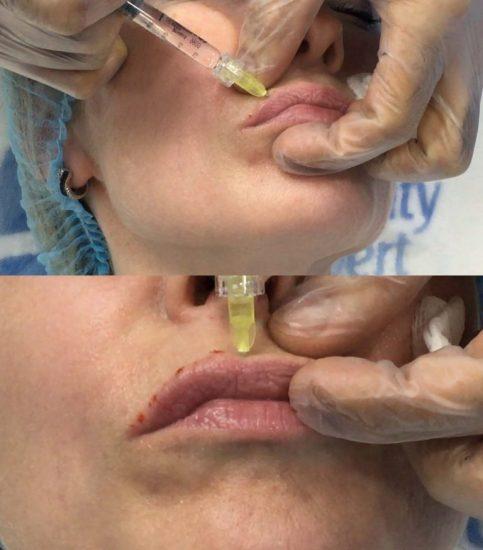 Стилаж для губ