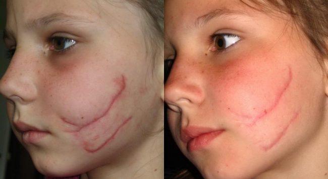 до и после применения кело-кот на лице