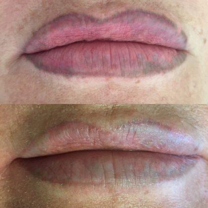 до и после удаления татуажа с губ ремувером