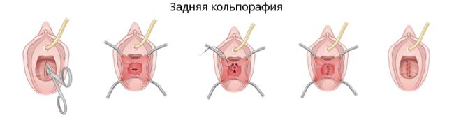 Задняя кольпорафия
