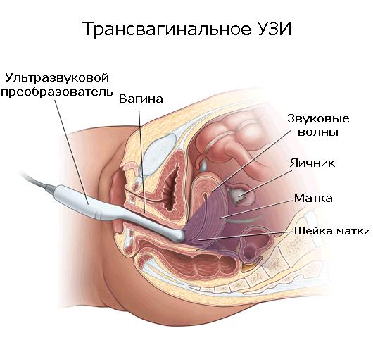 вагинальное узи