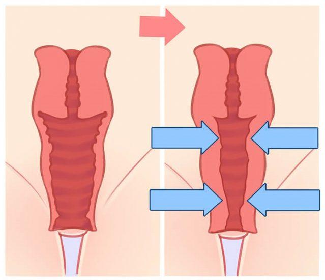 вагинопластика пример