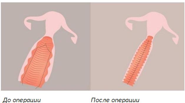 вагинопластика