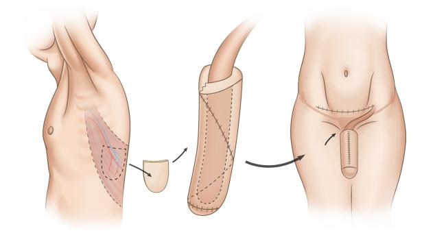 фаллопластика схема