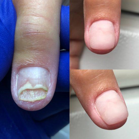 Мягкое протезирование ногтя «клей+конолин»