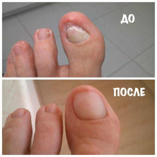 до и после протезирования ногтя