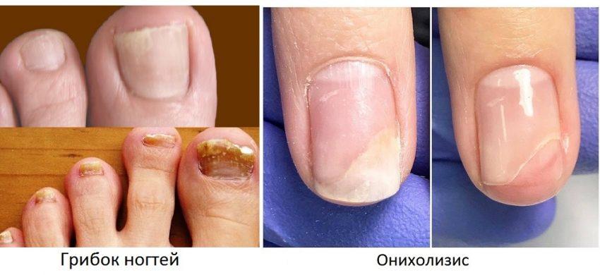 грибок ногтя и онихолизис