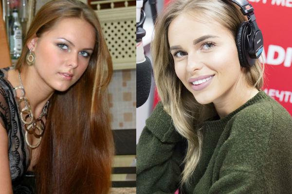 ханна до и после фото