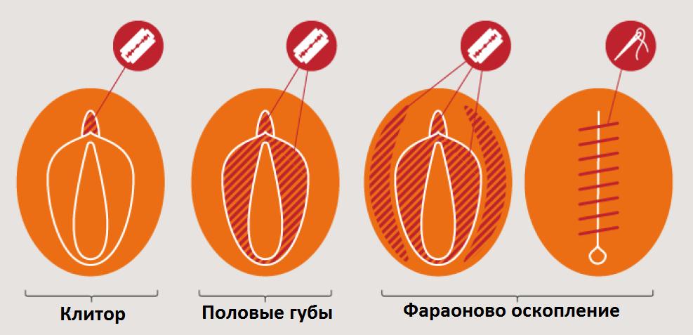 женское обрезание виды